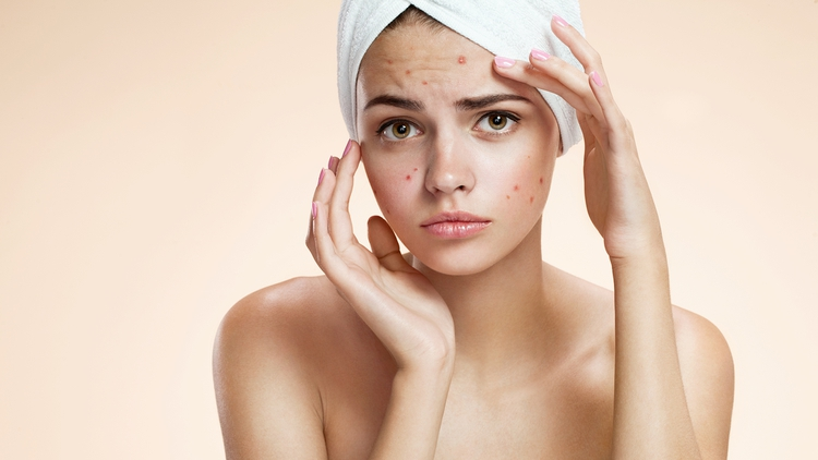 Acne: Causes, consequences and treatments. – Dra. Silvia Cabrera